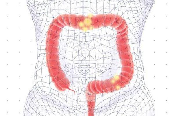 A colonoscopia avalia, em tempo real, a porção final do intestino. (Ilustração: Lucas Kazakevicius/SAÚDE é Vital)